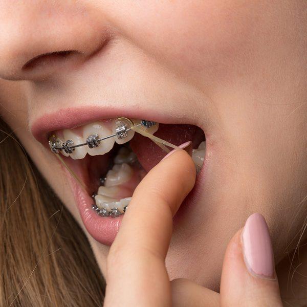 braces-bands-1024