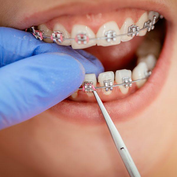 braces-dentist-fixing-1024